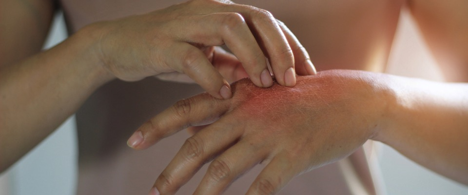 Esame della pelle e del capello, come funziona nella Farmacia Elifani di Meta (Na)